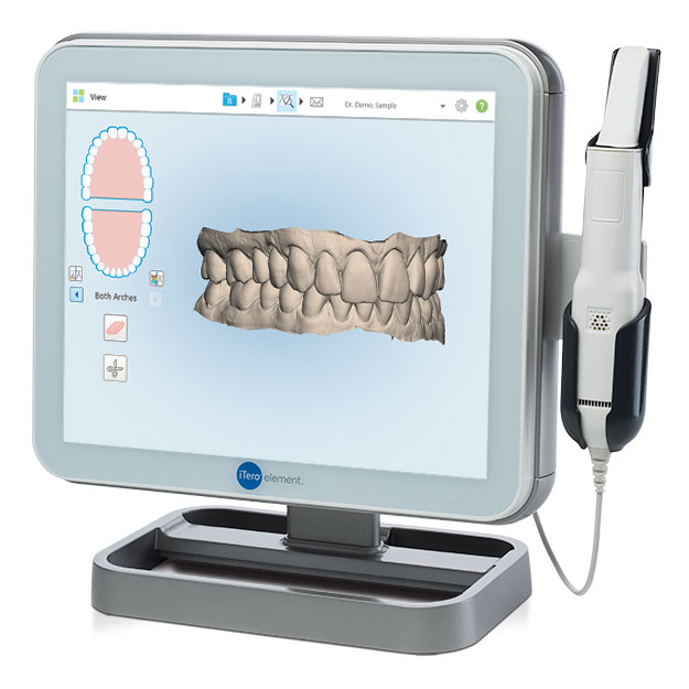 itero Digital dental impression high park